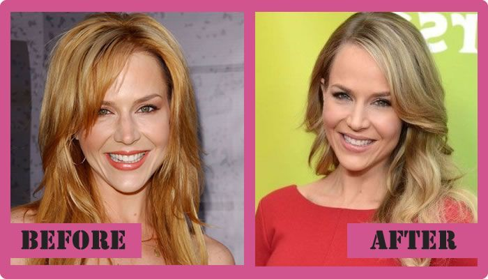Julie Benz Plastic Surgery Before And After Julie Benz Plastic Surgery  #JulieBenzPlasticSurgery #JulieBenz #gossipmagazines