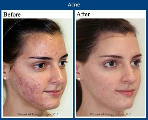 how to get rid of acne scars in 2 weeks