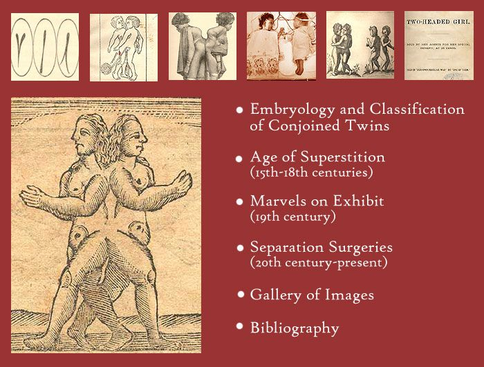 An online exhibition about the history of conjoined twins. Courtesy of the TOTALLY AWESOME website of the U.S. National Library of Medicine.