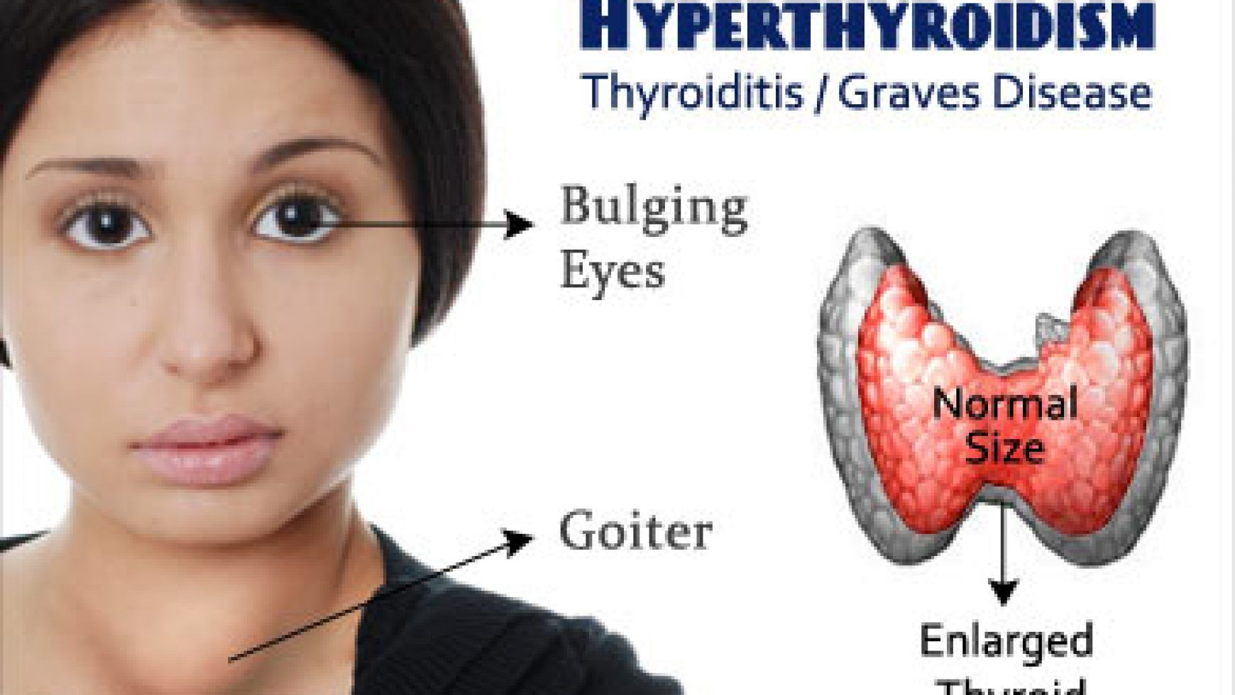 Pictures Of Graves Disease Eyes Graves Disease Graves Disease