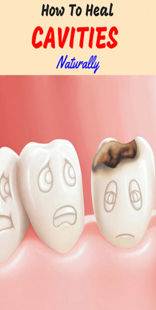 How To Heal Cavities Naturally – Gonnee Lifestyle #OralHealthAndHygiene #ToothpasteIsOralCare #cavities #Gonnee #Heal #Lifestyle #Naturally #OralHealthAndHygiene #Tooth #WhatIsOralHealthCare