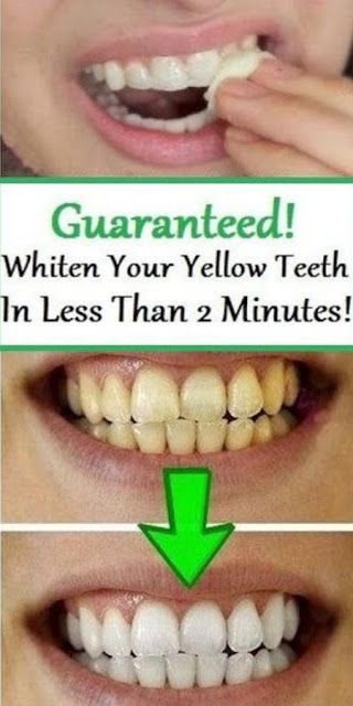 Guaranteed! Whiten Your Yellow Teeth In Less Than 2 Minutes! #howtowhitenyourteeth