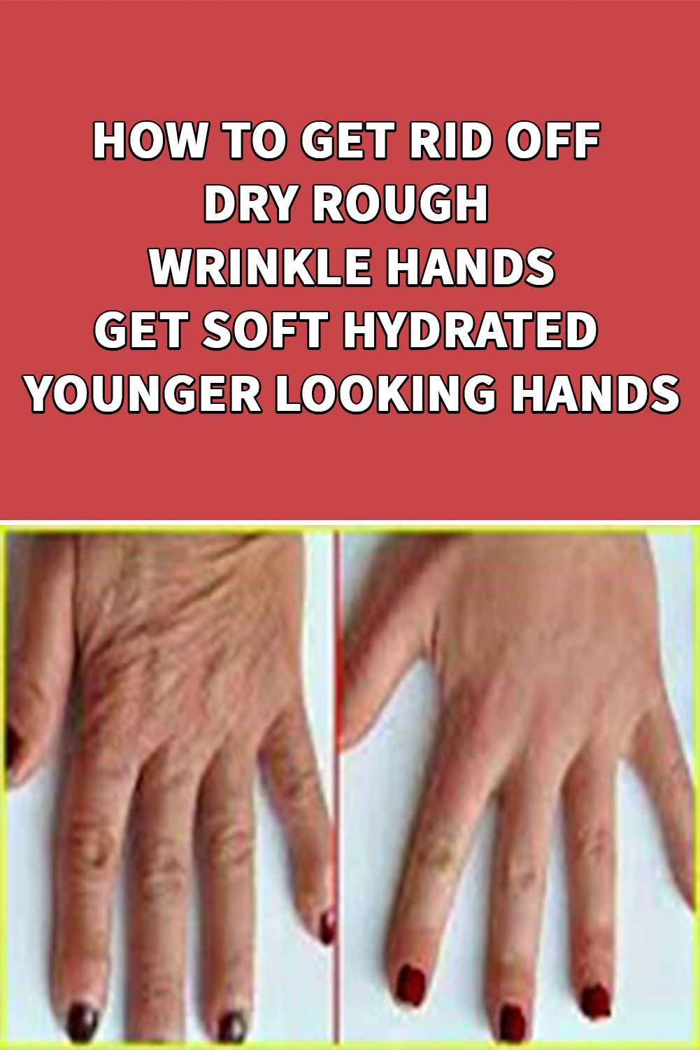 How To Get Rid Of Wrinkles On Fingers Naturally