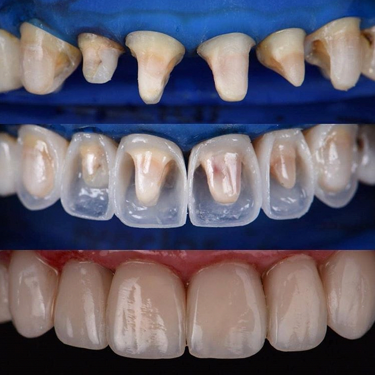 Building Up Teeth With Composite An Alternative To Veneers And