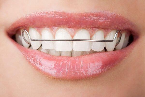 thắc mắc Niềng răng lệch lạc bao nhiêu tiền   Nha khoa, Sức khỏe răng  miệng, Chỉnh nha