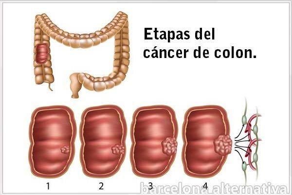 cancer al higado graso 4