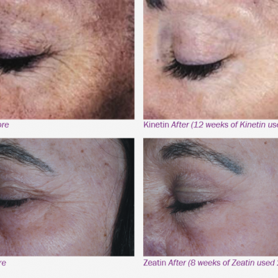 Pin on How to Remove Facial folds, wrinkles lines & scars