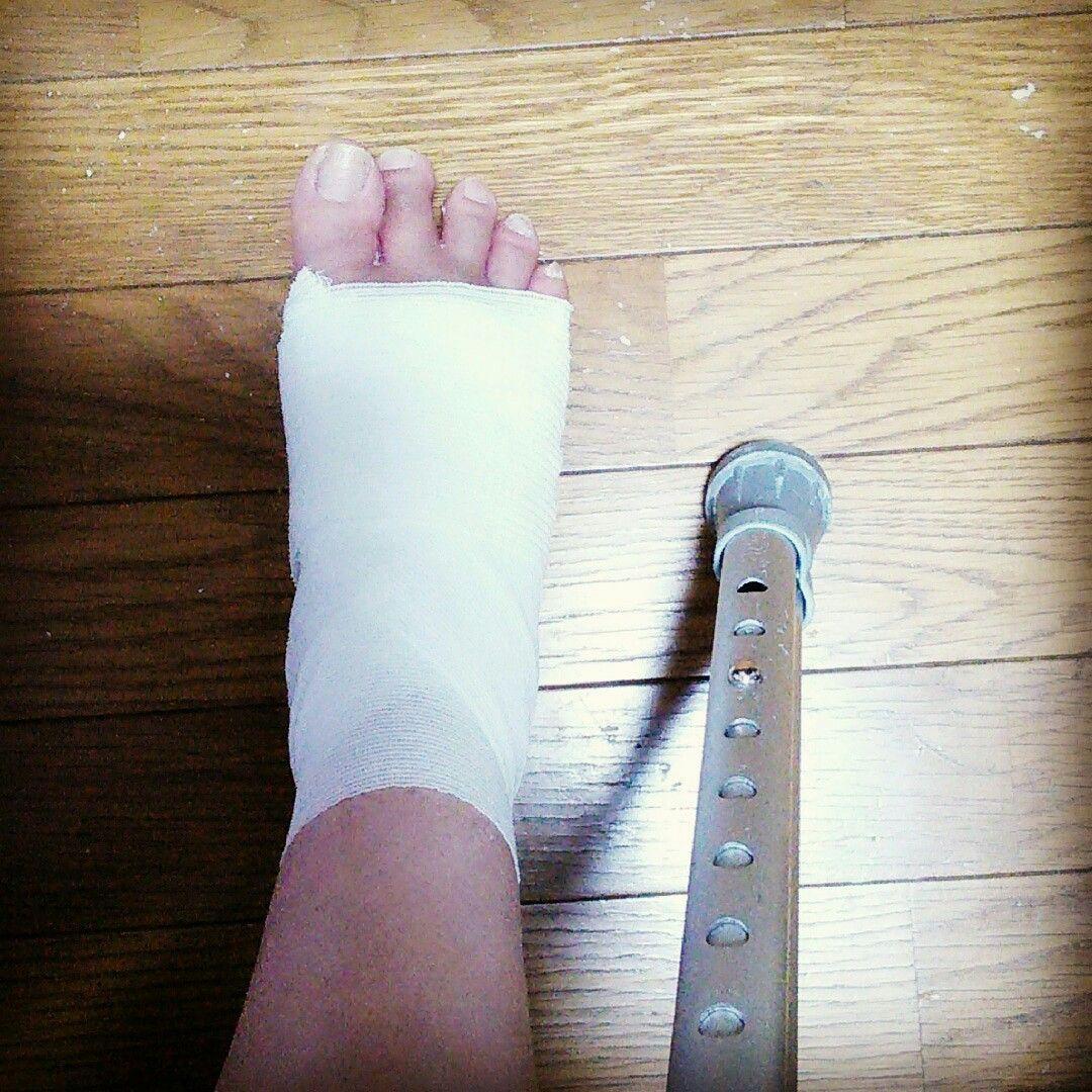 骨折して4週間 ギブスは外れたものの 複雑骨折で まだ骨がつかず ...