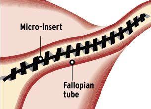 90786506f1c05a3c782932d3c8c777e8 - How To Get Rid Of Bloating After Tubal Ligation