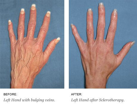 bulging veins in hands natural treatment