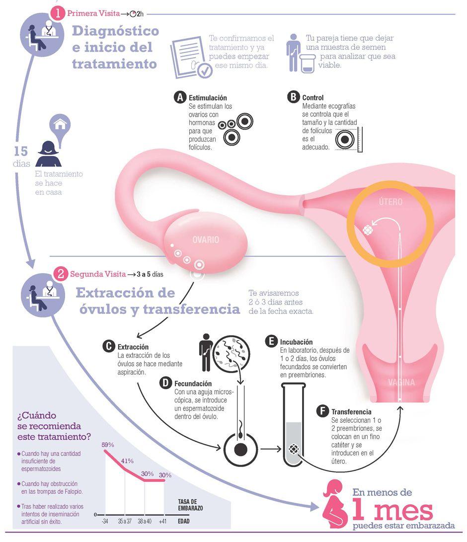 Fecundación in vitro con óvulos propios y semen de la pareja Es una técnica de laboratorio que consiste en fecundar los óvulos, previamente extraídos, con los espermatozoides de tu pareja.