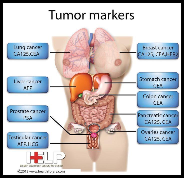 Tumour Markers CA Cancer ,CEA Carcino Embrogenic Antigen   Nursing ...