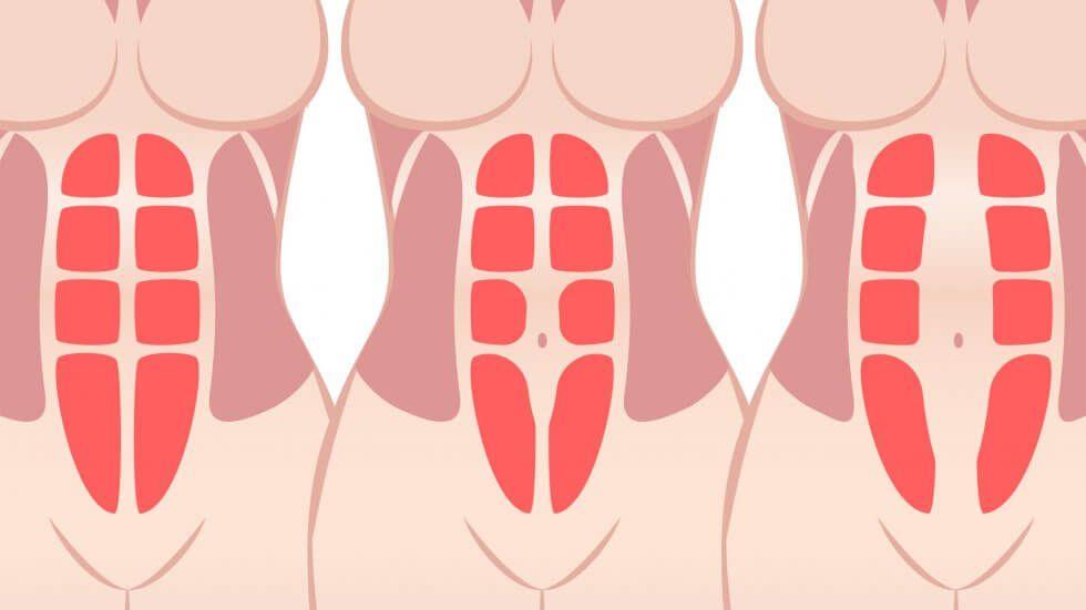 Diastasis recti do you have it plus how to treat it