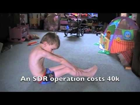 Selective Dorsal Rhizotomy Sdr Operation For Chris Youtube Cerebral Palsy Children Operator