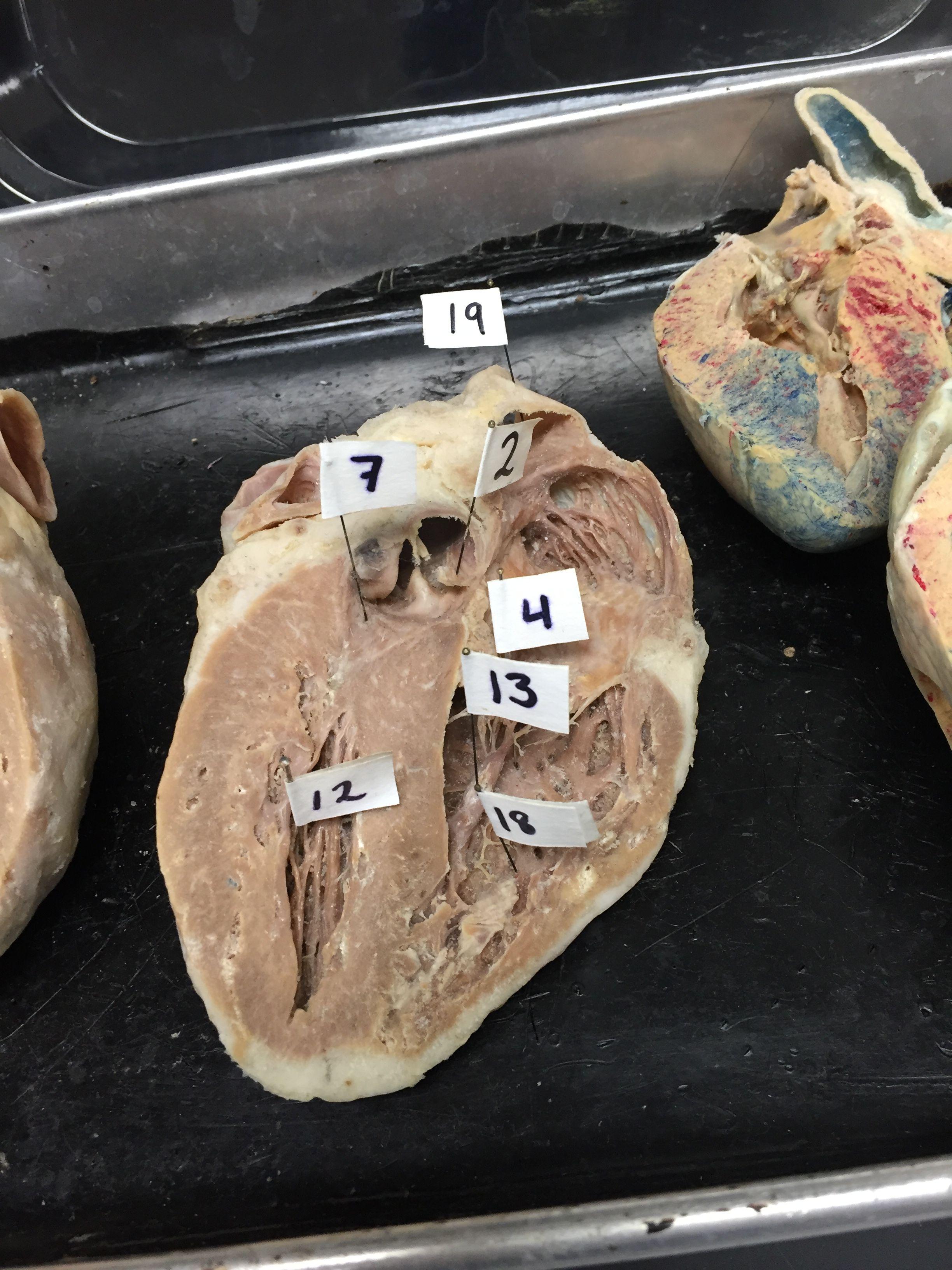Sheeps Heart 1. Arch of Aorta 2. Aortic Semilunar Valve 3 ...
