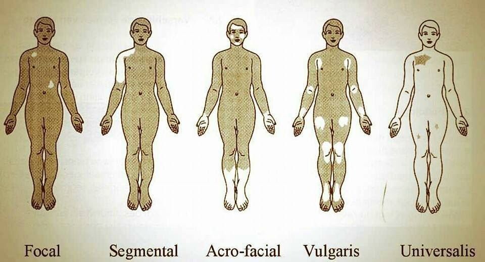 Types Of Vitiligo Vitiligo Treatment Vitiligo Vitiligo Cure
