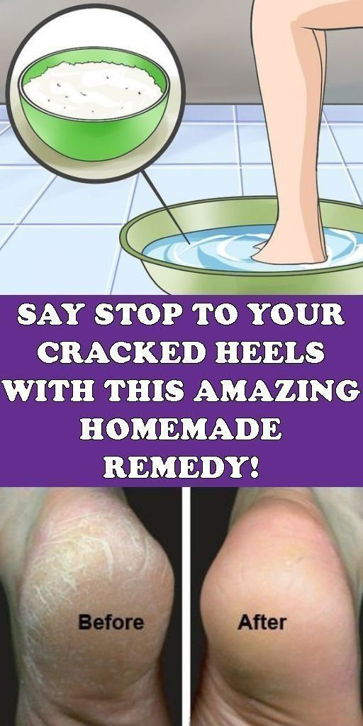 SAY STOP TO YOUR CRACKED HEELS WITH THIS AMAZING HOMEMADE REMEDY! #crackedskinonheels SAY STOP TO YOUR CRACKED HEELS WITH THIS AMAZING HOMEMADE REMEDY! #crackedskinonheels SAY STOP TO YOUR CRACKED HEELS WITH THIS AMAZING HOMEMADE REMEDY! #crackedskinonheels SAY STOP TO YOUR CRACKED HEELS WITH THIS AMAZING HOMEMADE REMEDY! #crackedskinonheels