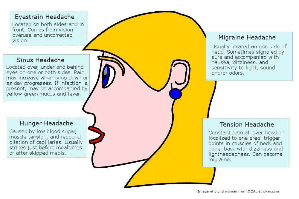 Migraine Headache Diagram Headache Diagram Headache Location Migraine Headaches Headache