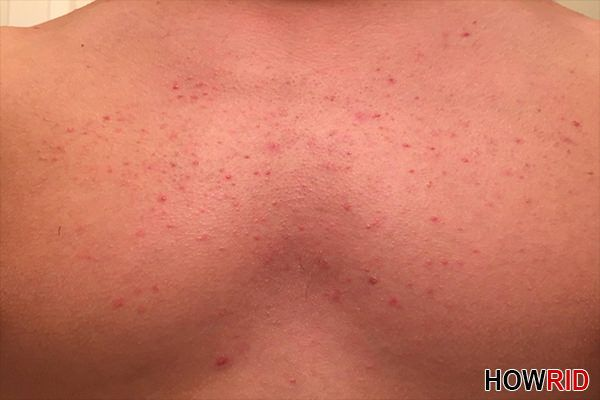 How To Get Rid Of Skin Rash On Neck