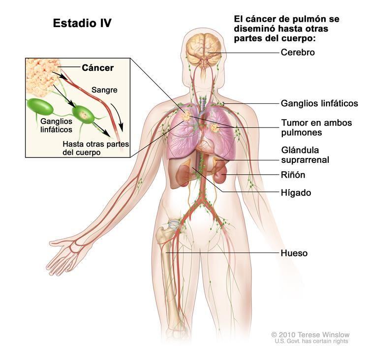 Cáncer de pulmón de células no pequeñas en estadio IV. En el dibujo ...