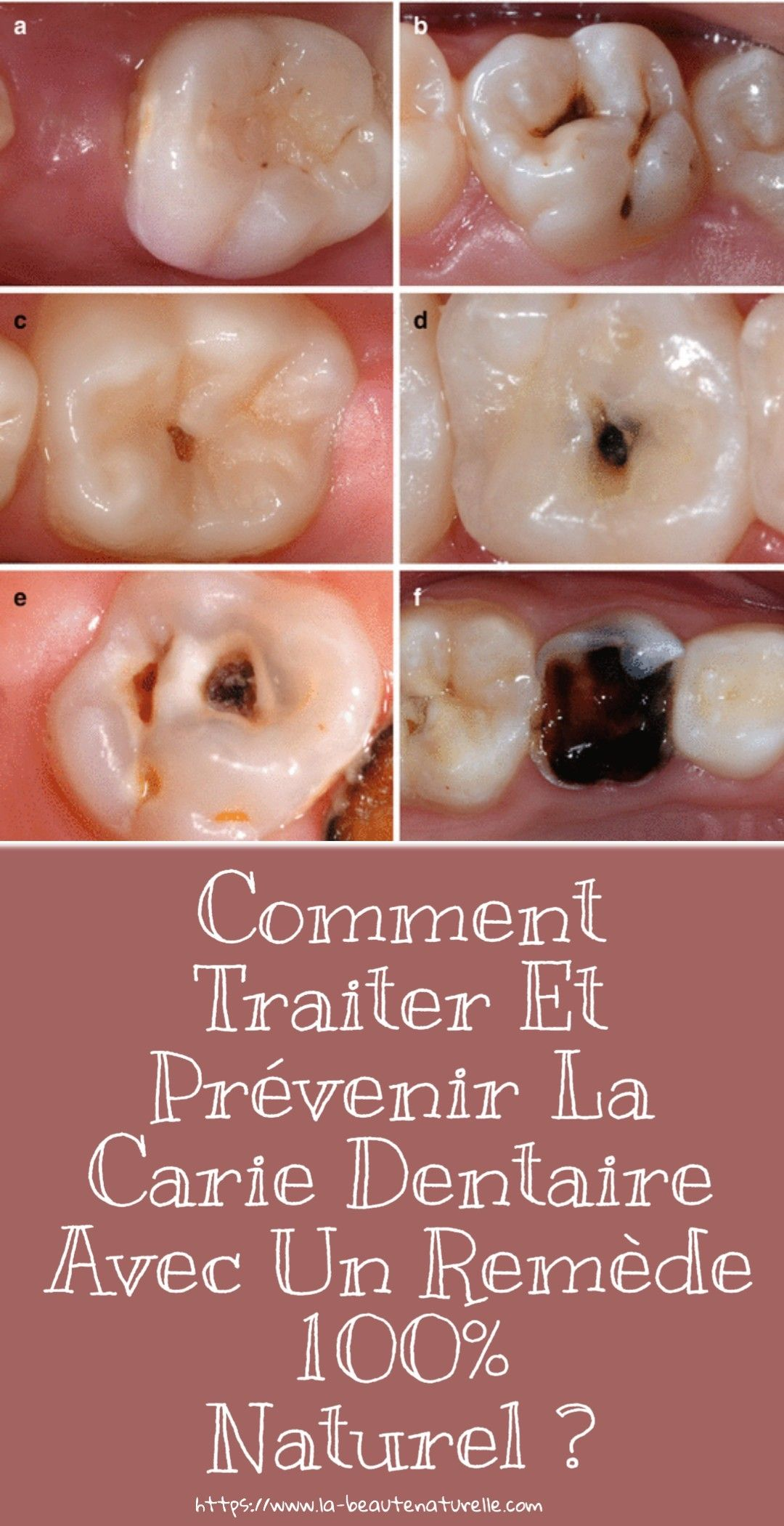 Pin On Hygiene Bucco Dentaire