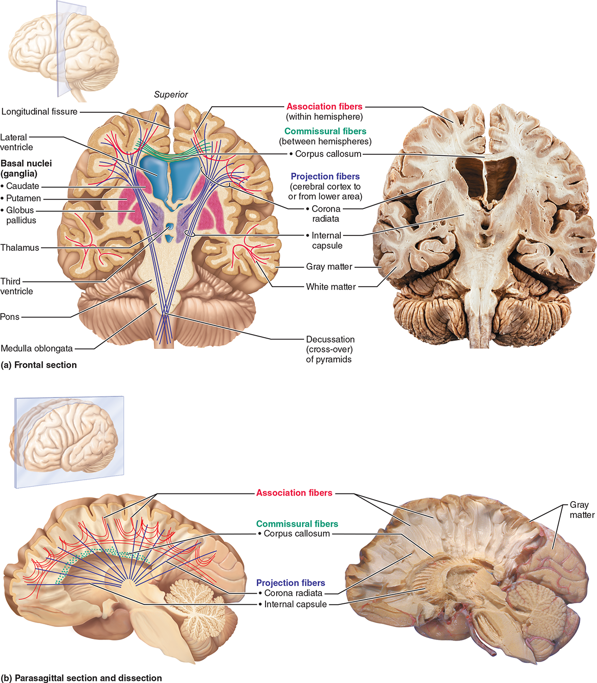 The Brain | Anatomy | Pinterest | Anatomy and Brain