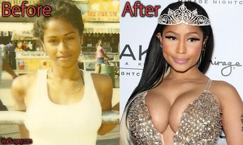 Nicki Minaj Plastic Surgery, Before and After Butt Implants Pictures