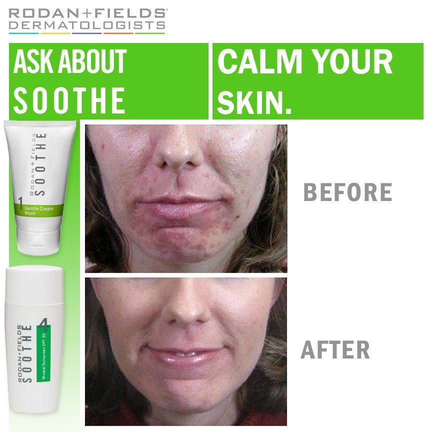 Rodan And Fields Before And After Treating Rosacea