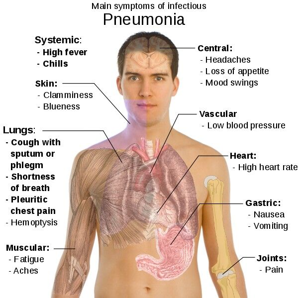 Pneumonia With Images Pneumonia Symptoms Pneumonia Treatment