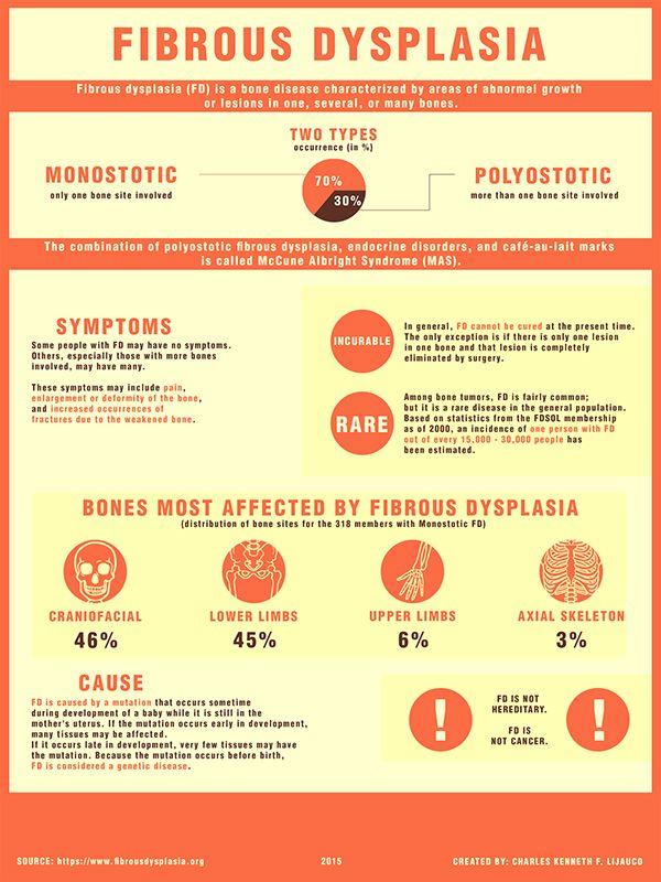 Fibrous Dysplasia Infographic on Behance | Endocrine ...