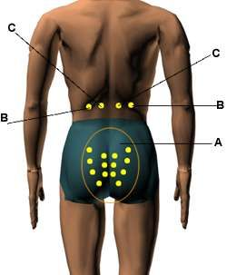 Sexually stimulating acupressure points