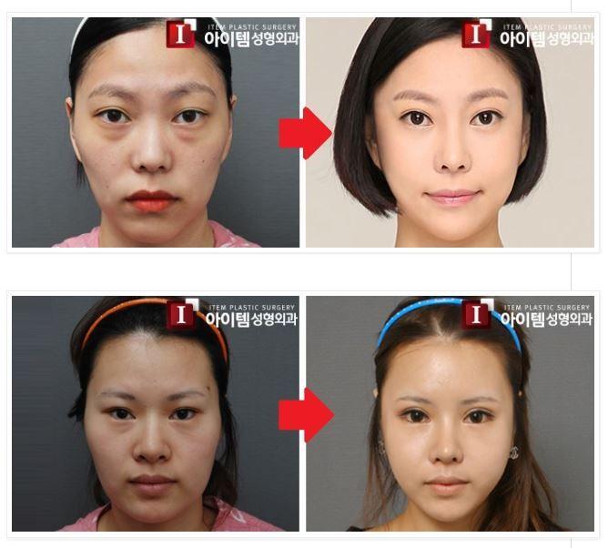Zygomatic Facial 10