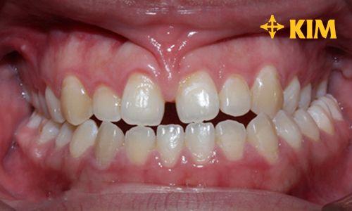 Răng cửa thưa làm thế nào để sát khít nhau nhanh - đẹp - tiết kiệm
