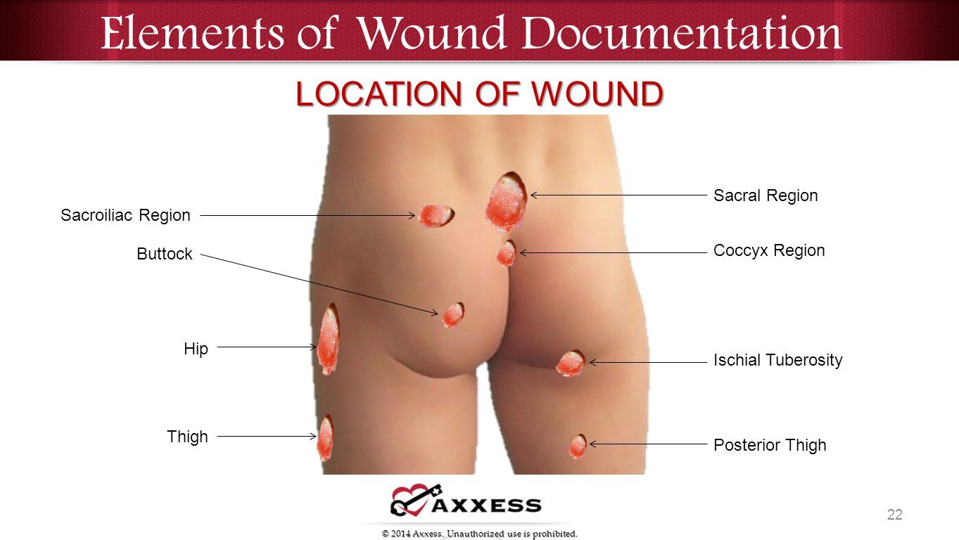 wound care review best practice guidelines