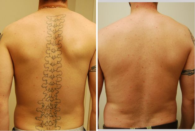 Tattoo Removal Faq Vernon Hills Chicago Il Ritacca Cosmetic Surgery Medspa Tattoo Removal Cream Tattoo Removal Cost Latest Tattoos