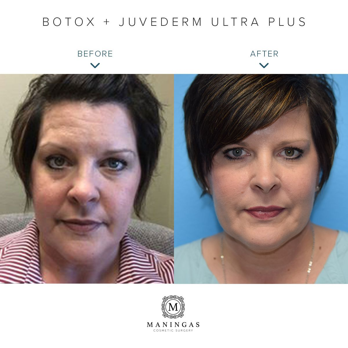 Botox to smooth lines and wrinkles in the forehead and