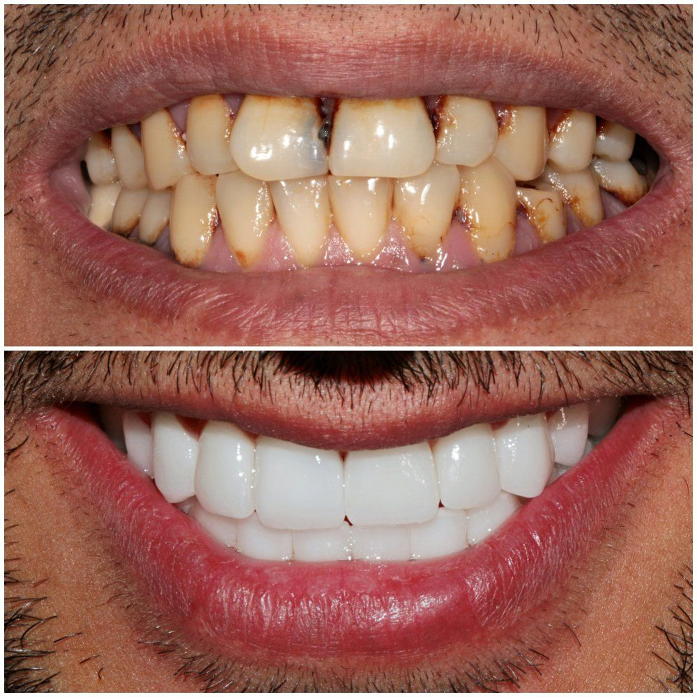 An amazing Smile Makeover with Zirconium Dental Crowns by Premium