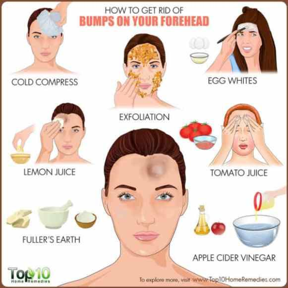 How To Get Rid Of Bumps On Your Forehead Helpful Tips Forehead
