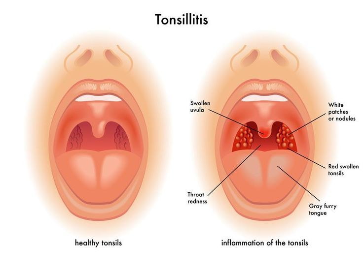 Tonsil stone ear infection