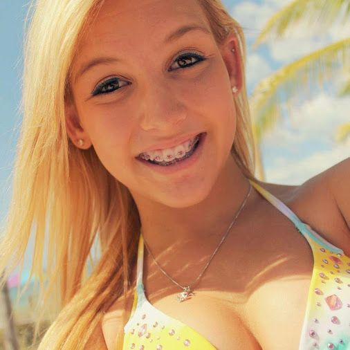 Teen deja with braces