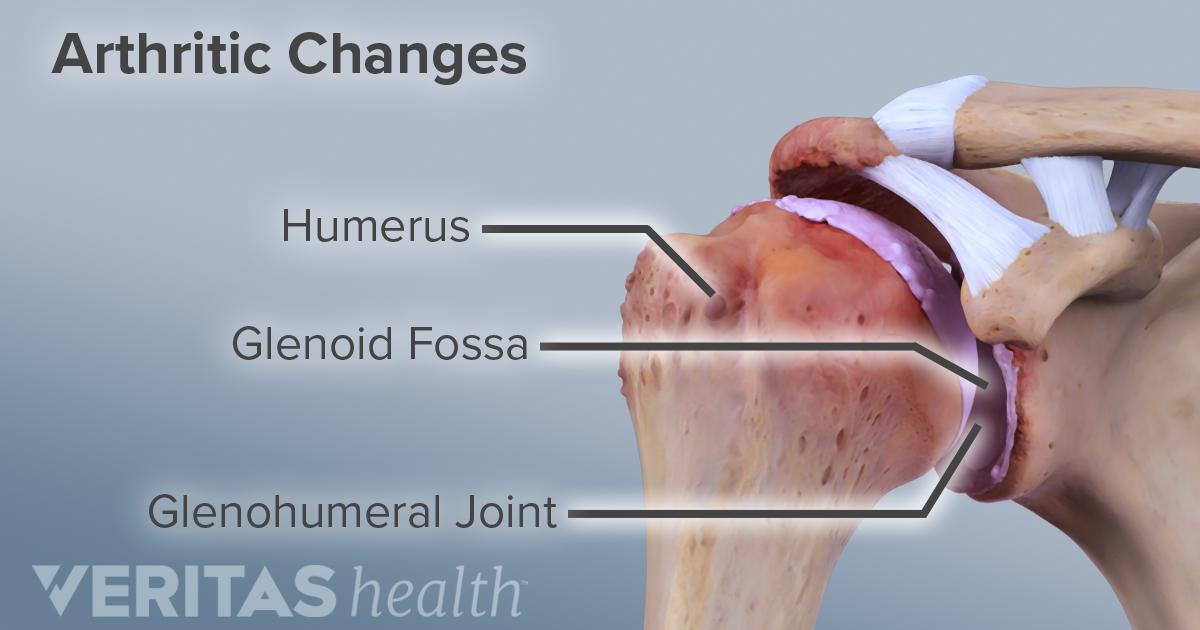 What Is Shoulder Osteoarthritis Glenohumeral Arthritis