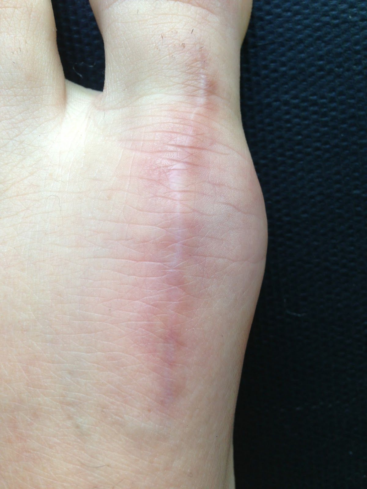 Pin on Bunions Be Gone my recovery from a double