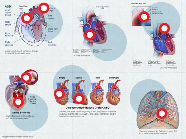To mark Heart Month, we have created the interactive image below to demonstrate different cardiovascular and thoracic surgical procedures from the Multimedia Manual of Cardio-Thoracic Surgery, selected by the Editor-in-Chief, Professor Marko I. Turina. #heart #cardiology