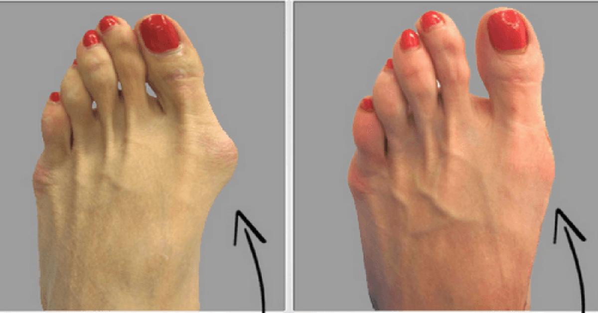dureri articulare degetul mare care este