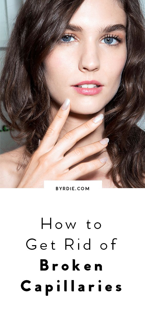 How To Get Rid Of Dilated Capillaries On Face