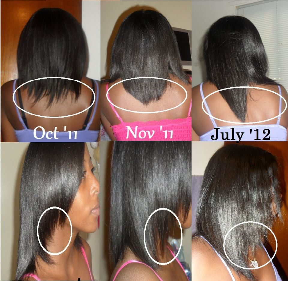 Before And After Hair Growth Tips Achieve Longer Stronger Fuller Healthier Hair With Hairfinity Vitamins See Mo Hair Growth Pills Hair Vitamins Hairfinity