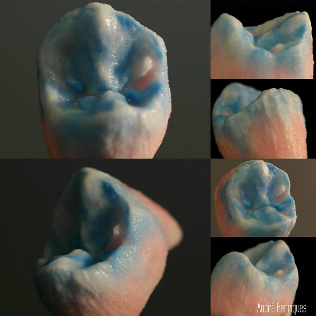 Premolar Part 3 The Build Up Crownandbridge Odontologia Odontologiaestetica Estheticdentistry Tooth Dental Dental Ceramics Dental Art Esthetic Dentistry