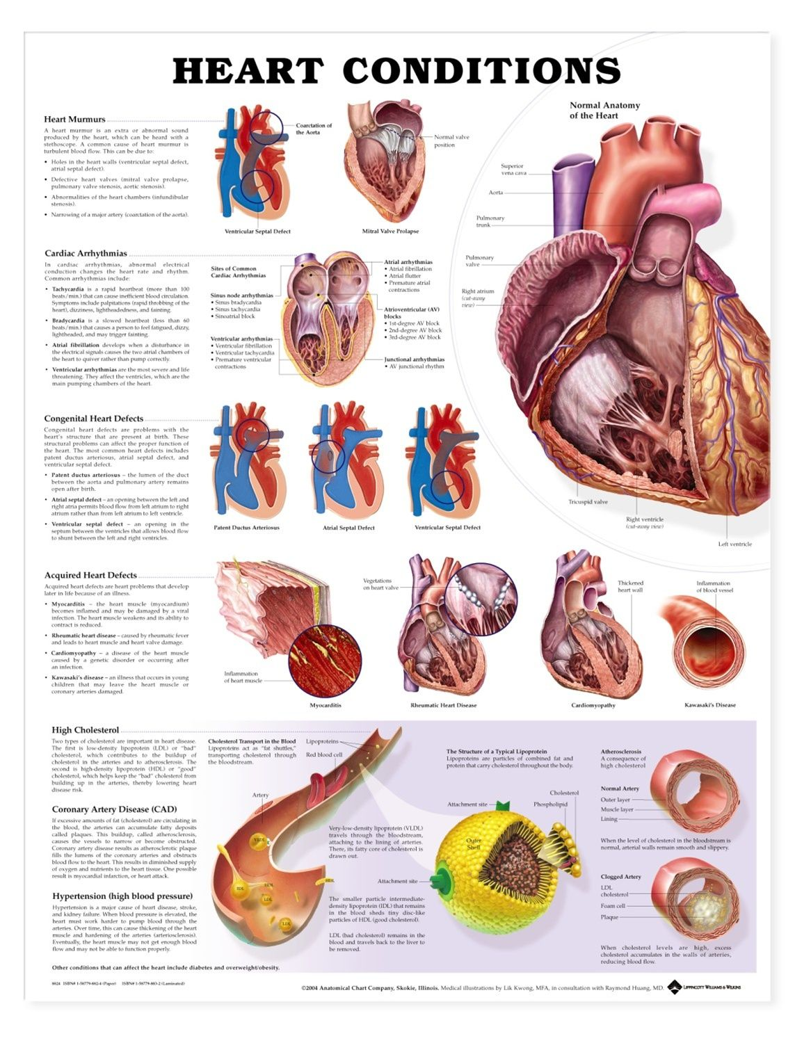 Heart Conditions Chart Heart Disease Poster Anatomystuff