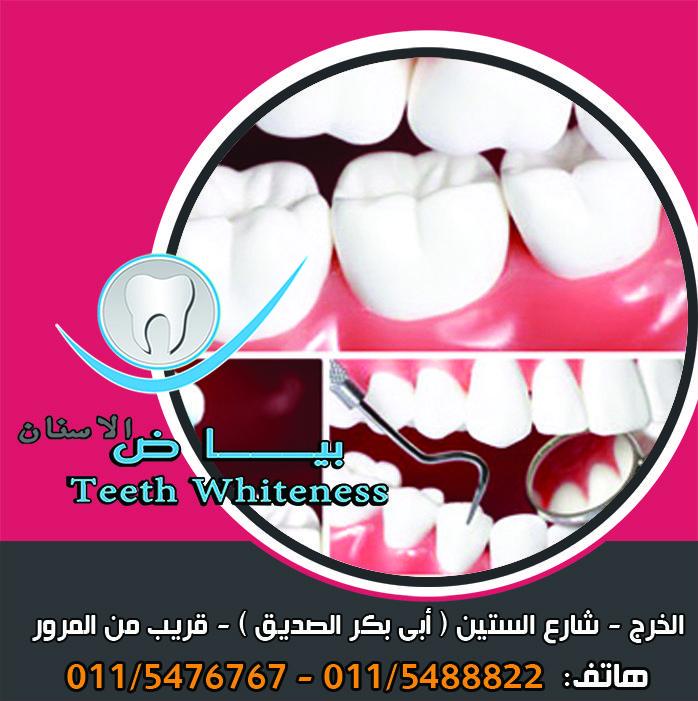 خراج الجذور يكون علاجه من خلال جلسات متعددة لعلاج الجذور مع طبيب متخصص يصاحبها تناول المضاد الحيوي وينبغي إجراء أشعة على الضرس المصاب لمعرفة نوع الخرا Teeth