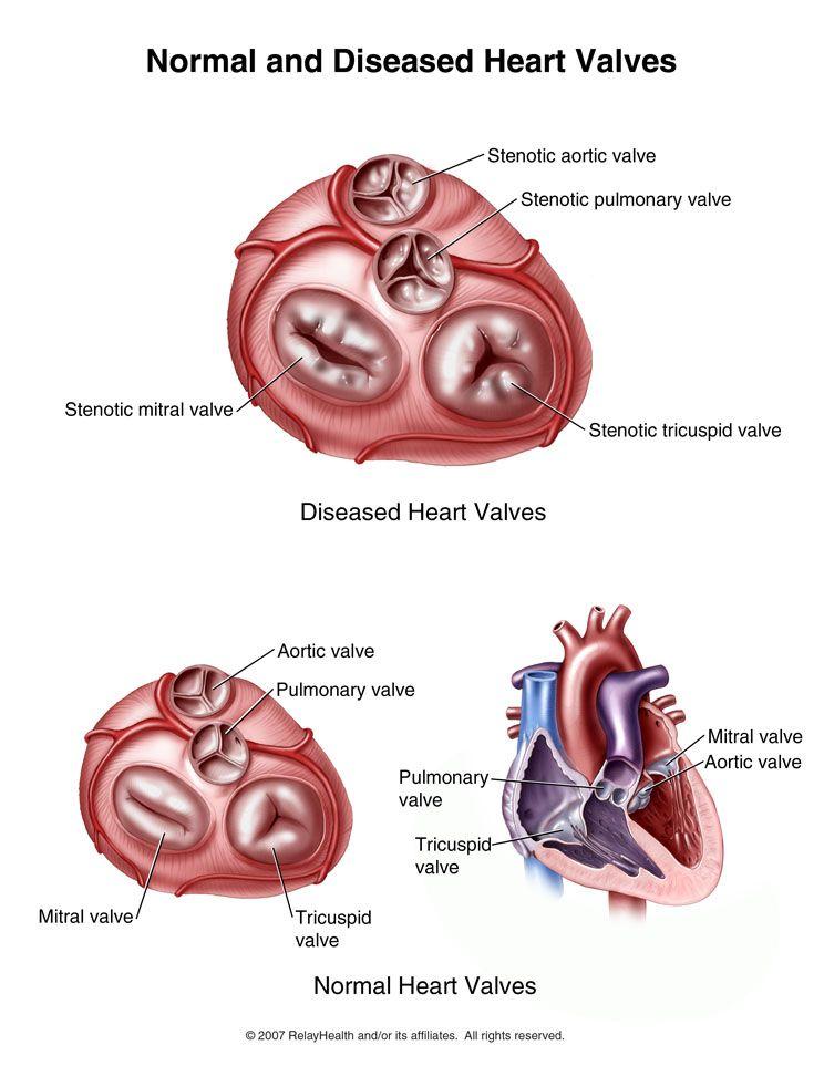 Normal and diseased heart valves | Bio | Pinterest | Heart valves ...